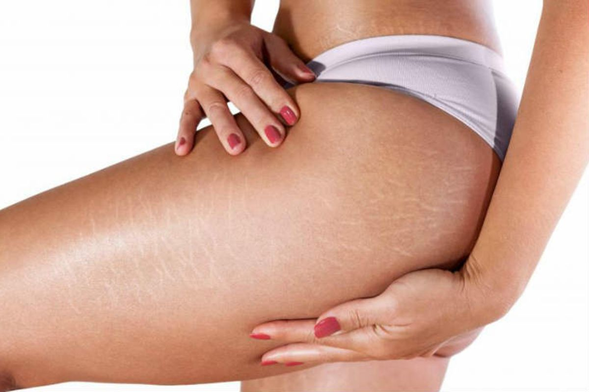 Home Remedies to Prevent and Eliminate Stretch Marks