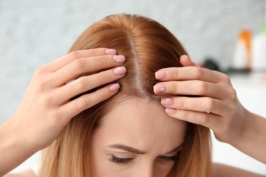Hair Loss Treatment for Alopecia