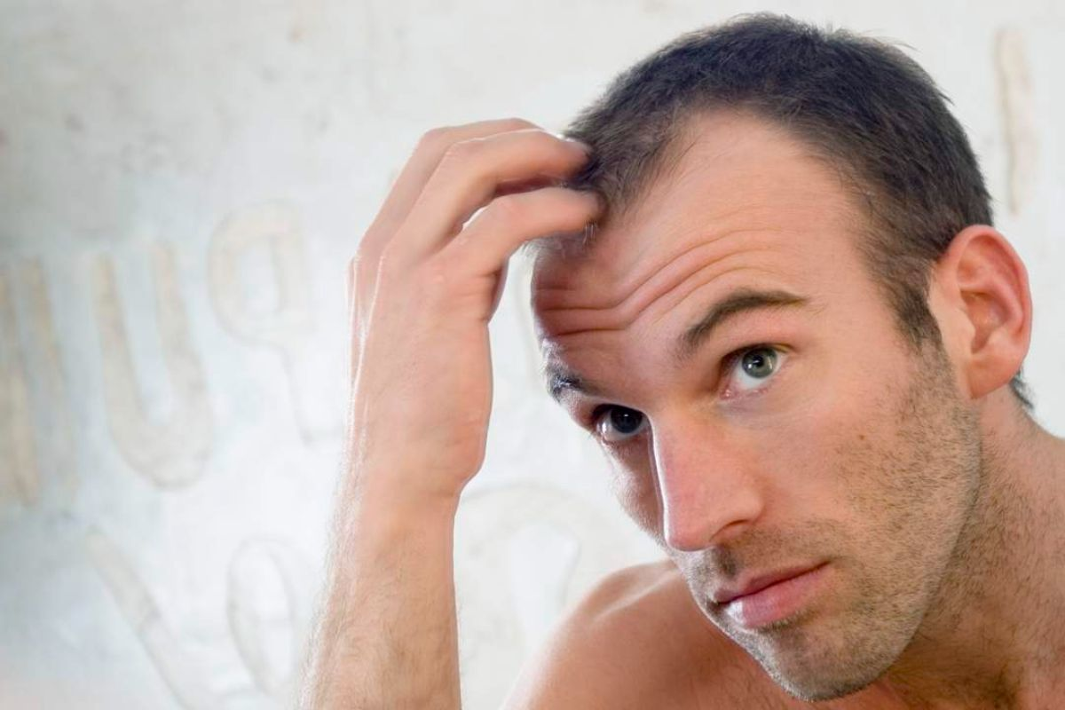 Is there a connection between baldness and heart disease?